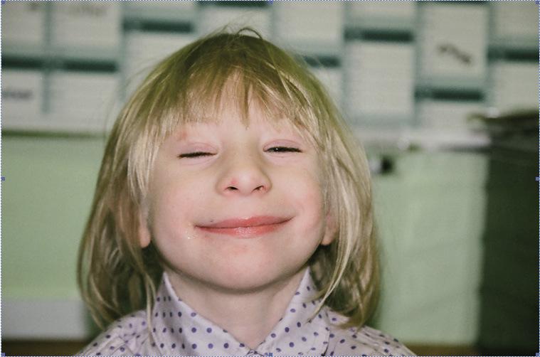 Znalezione obrazy dla zapytania dysmorfia twarzy