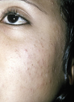Small 3401   comedonal acne opt