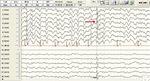 Small elektroencefalografia opt2