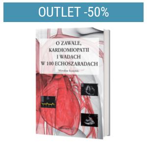 O zawale, kardiomiopatii i wadach w 100 echoszaradach | Outlet